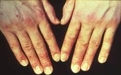 23 Zubora Аллергическая контактная экзема